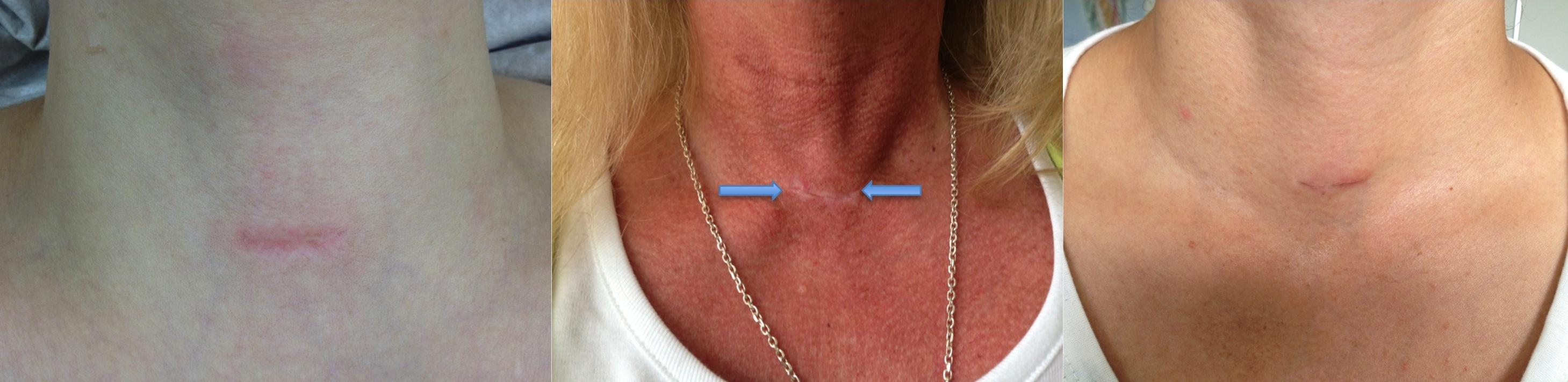 Endokrine Chirurgie: Uniklinik Essen